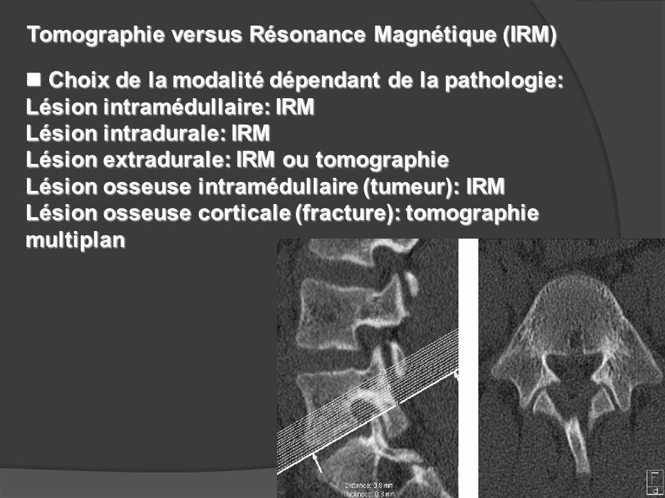 n Choix de la modalité dépendant de la pathologie: Lésion intramédullaire: IRM Lésion intradurale: IRM Lésion extradurale: IRM ou tomographie Lésion o
