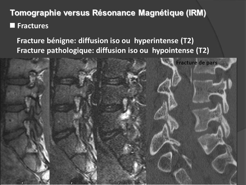 n Fractures Fracture bénigne: diffusion iso ou hyperintense (T2) Fracture pathologique: diffusion iso ou hypointense (T2) Fracture de pars Tomographie