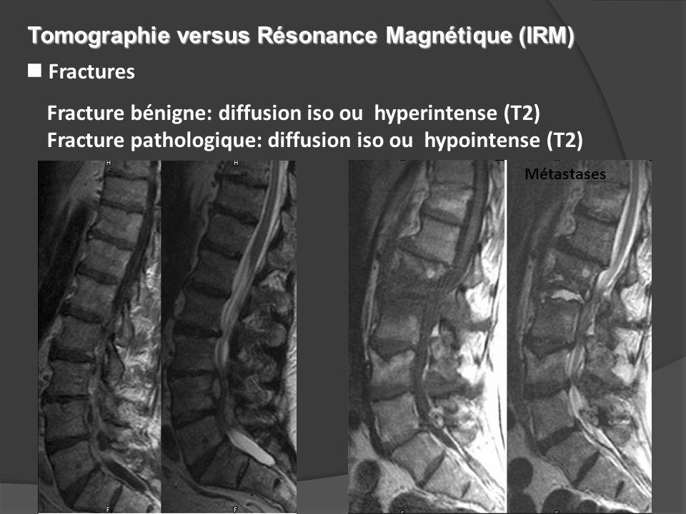 n Fractures Fracture bénigne: diffusion iso ou hyperintense (T2) Fracture pathologique: diffusion iso ou hypointense (T2) Métastases Tomographie versu