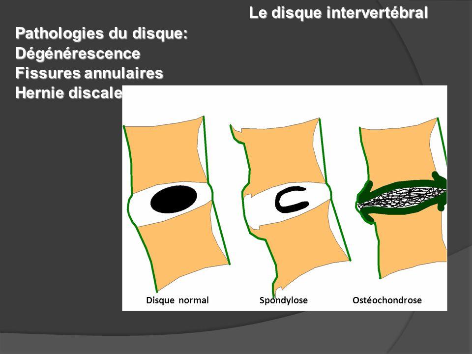 Le disque intervertébral Pathologies du disque: Dégénérescence Fissures annulaires Hernie discale Disque normal Spondylose Ostéochondrose