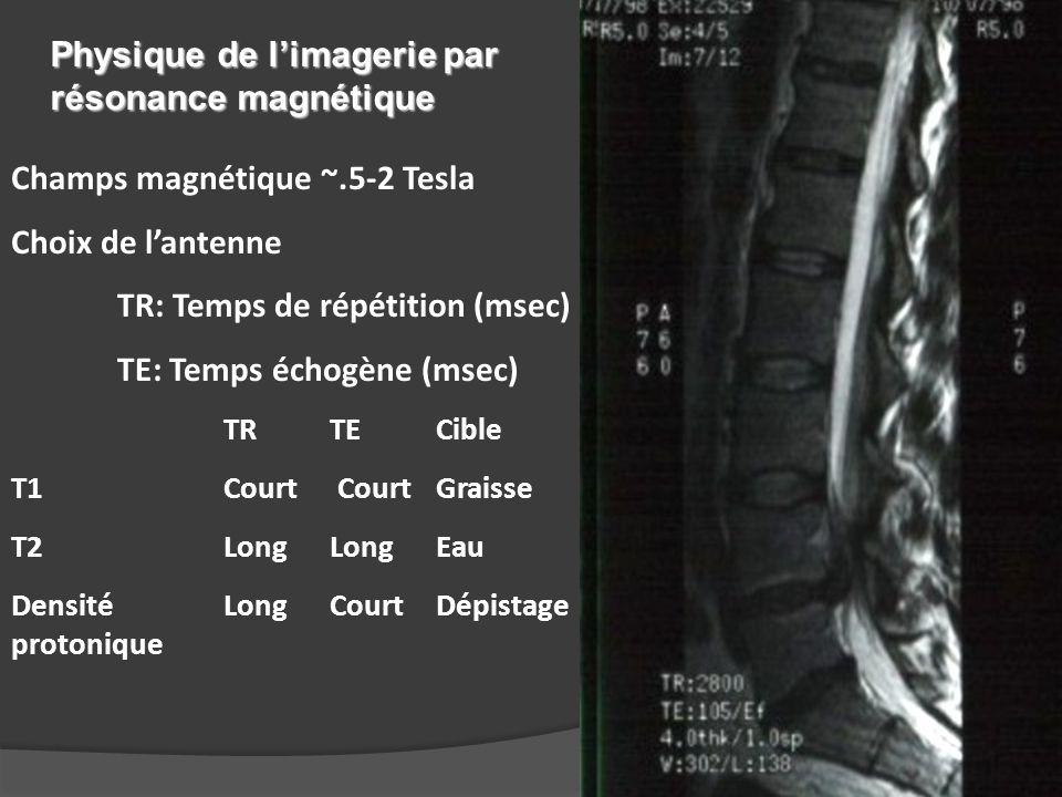 Champs magnétique ~.5-2 Tesla Choix de l'antenne TR: Temps de répétition (msec) TE: Temps échogène (msec) TRTECible T1Court (80)Court (200)Graisse T2Long (300)Long (2000)Eau Densité LongCourtDépistage protonique Physique de l'imagerie par résonance magnétique
