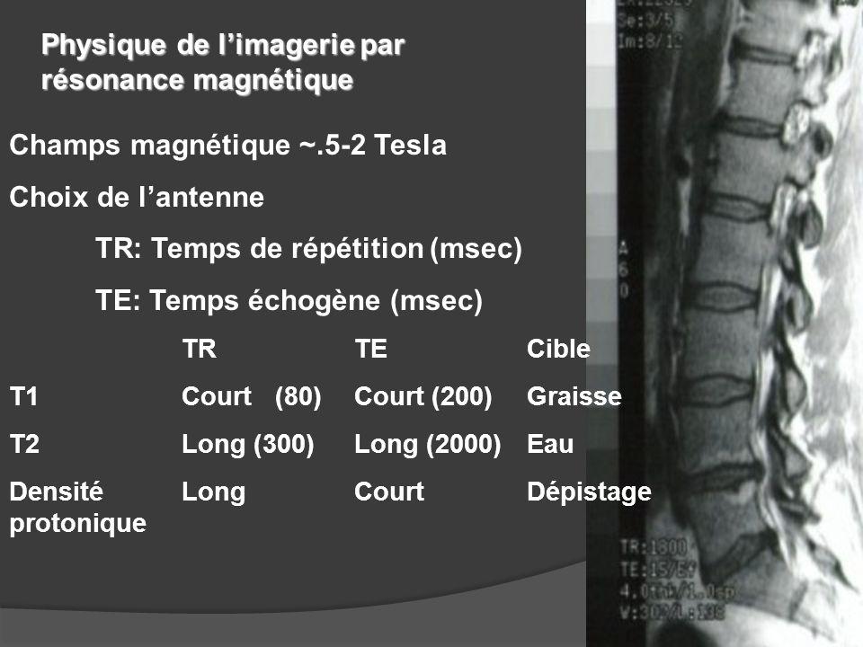 Champs magnétique ~.5-2 Tesla Choix de l'antenne TR: Temps de répétition (msec) TE: Temps échogène (msec) TRTECible T1Court (80)Court (200)Graisse T2L