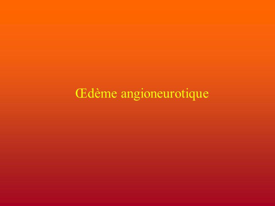 Œdème angioneurotique