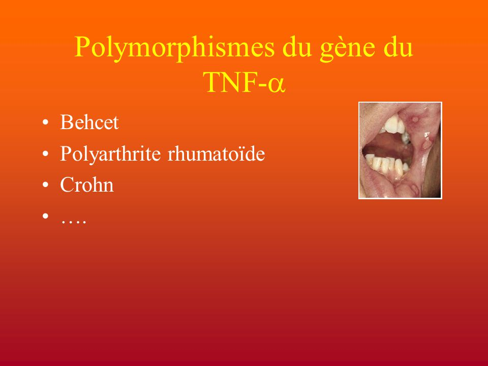 Polymorphismes du gène du TNF-  Behcet Polyarthrite rhumatoïde Crohn ….