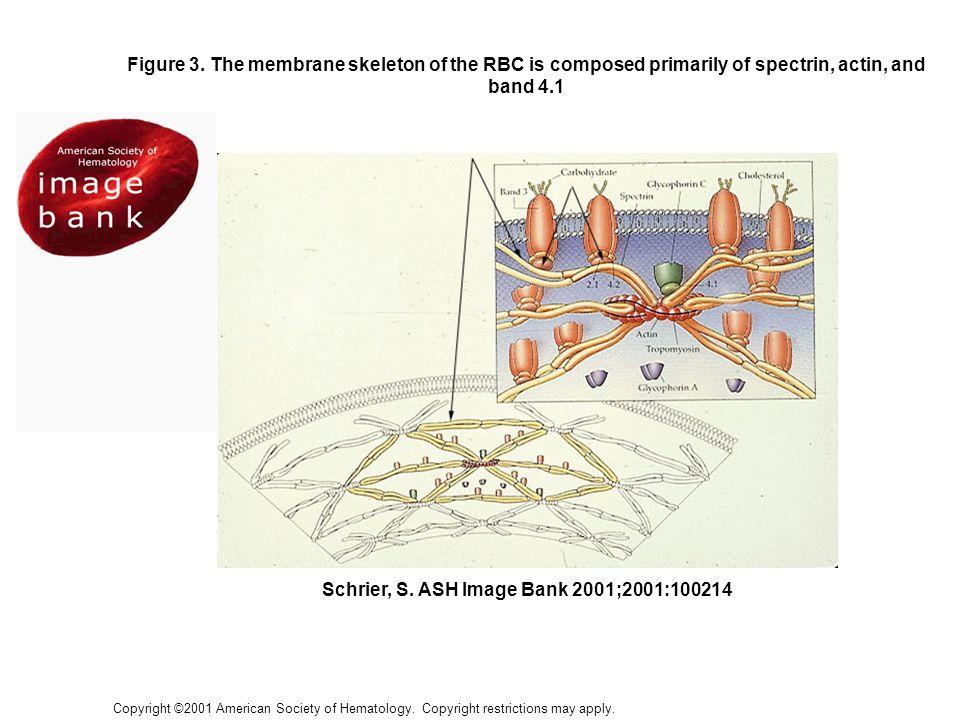 Sphérocytose héréditaire Histoire familiale positive dans 75% cas –Transmission autosomal dominant Pâleur, fatigue, ictère Splénomégalie Cholélithiase