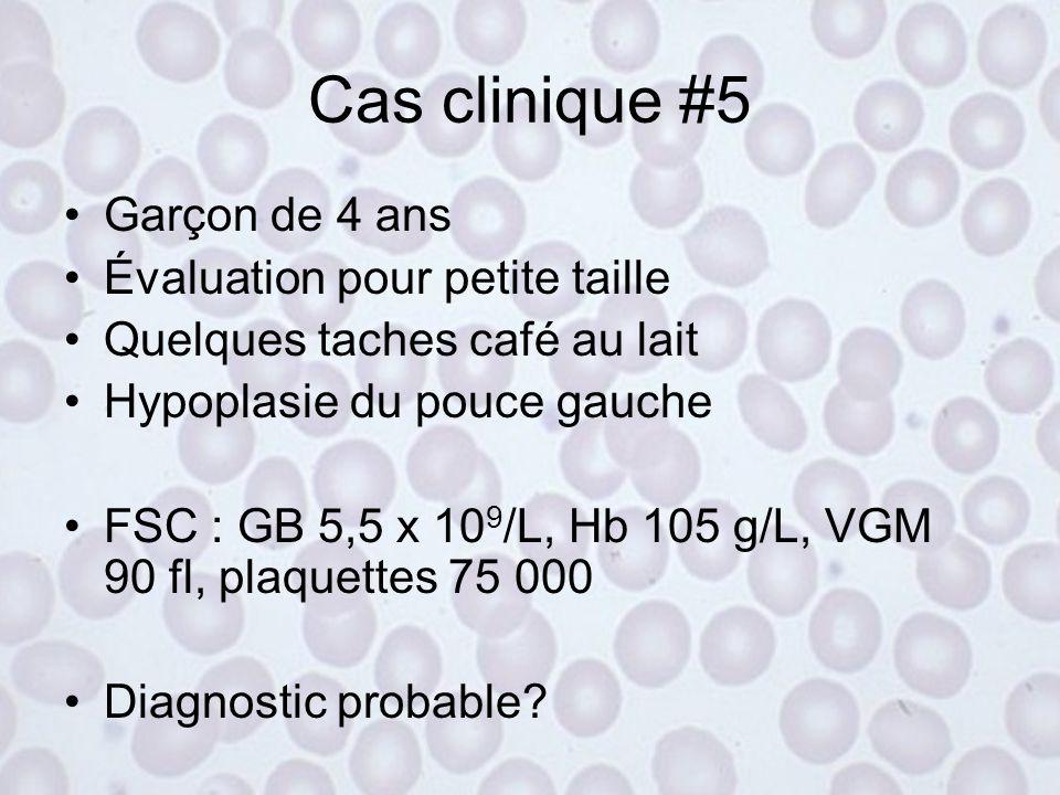 Cas clinique #4 Coombs direct : IgG fortement positif Dx : Anémie hémolytique auto-immune à anticorps chauds (IgG) Traitement –Maladie sous-jacente –P