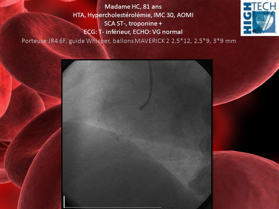 Madame HC, 81 ans HTA, Hypercholestérolémie, IMC 30, AOMI SCA ST-, troponine + ECG: T- inférieur, ECHO: VG normal Porteuse JR4 6F, guide Whisper, ball