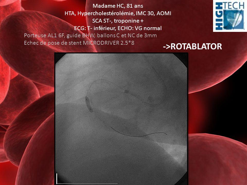 Madame HC, 81 ans HTA, Hypercholestérolémie, IMC 30, AOMI SCA ST-, troponine + ECG: T- inférieur, ECHO: VG normal Porteuse AL1 6F, guide BHW, ballons