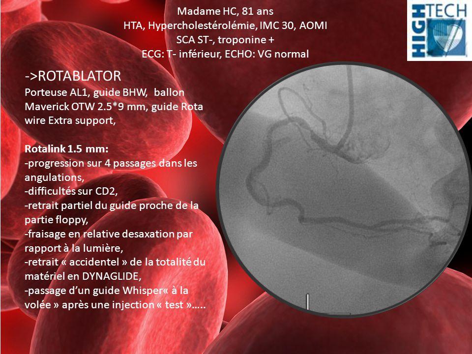 Madame HC, 81 ans HTA, Hypercholestérolémie, IMC 30, AOMI SCA ST-, troponine + ECG: T- inférieur, ECHO: VG normal ->ROTABLATOR Porteuse AL1, guide BHW