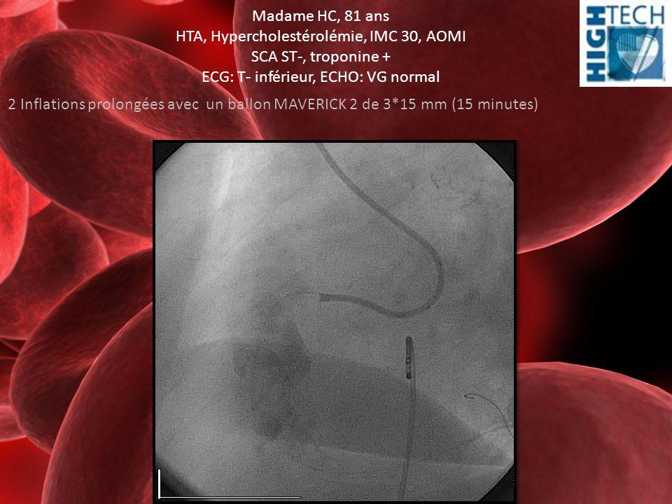 Madame HC, 81 ans HTA, Hypercholestérolémie, IMC 30, AOMI SCA ST-, troponine + ECG: T- inférieur, ECHO: VG normal 2 Inflations prolongées avec un ball