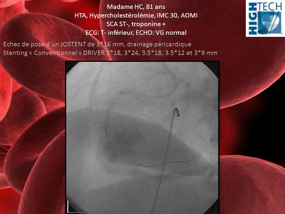 Madame HC, 81 ans HTA, Hypercholestérolémie, IMC 30, AOMI SCA ST-, troponine + ECG: T- inférieur, ECHO: VG normal Echec de pose d'un JOSTENT de 3*16 m