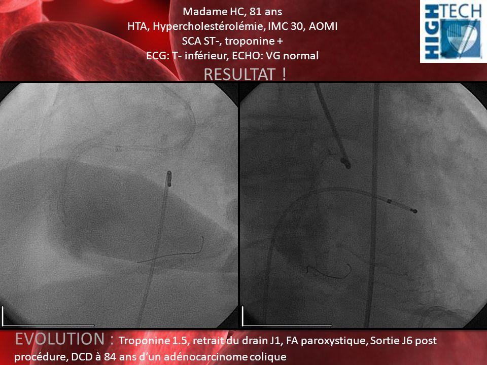 Madame HC, 81 ans HTA, Hypercholestérolémie, IMC 30, AOMI SCA ST-, troponine + ECG: T- inférieur, ECHO: VG normal RESULTAT ! EVOLUTION : Troponine 1.5