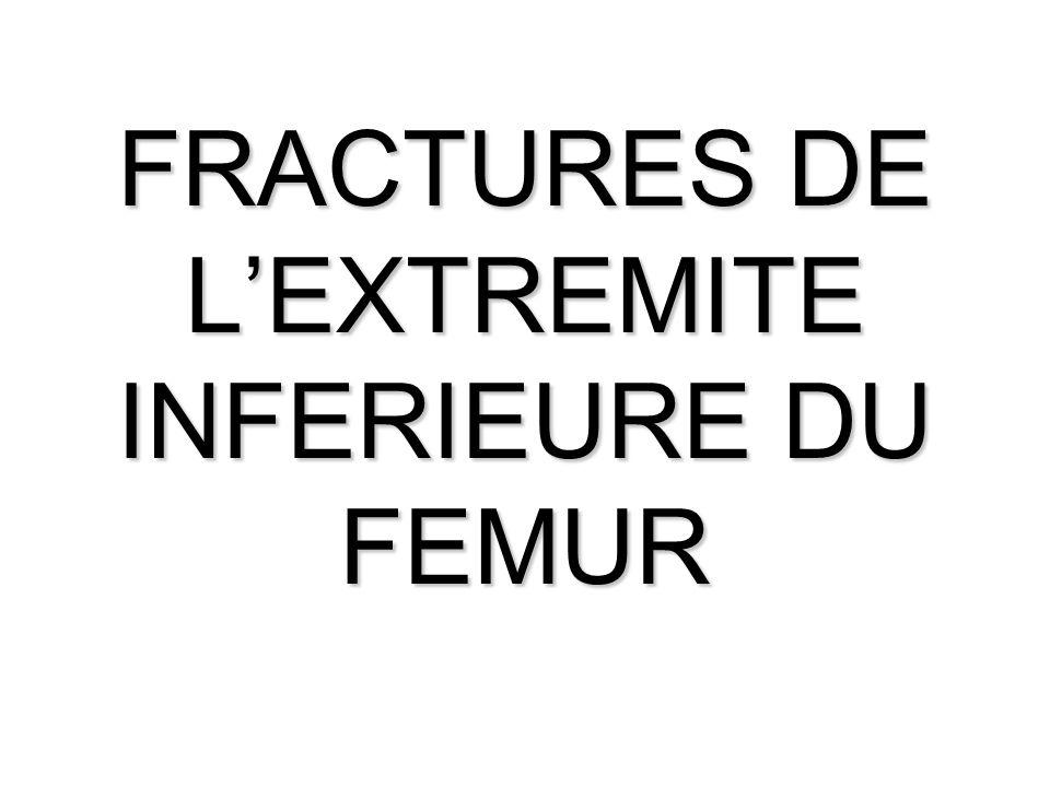 FRACTURES DE L'EXTREMITE INFERIEURE DU FEMUR