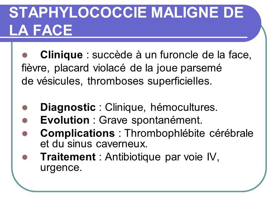 STAPHYLOCOCCIE MALIGNE DE LA FACE Clinique : succède à un furoncle de la face, fièvre, placard violacé de la joue parsemé de vésicules, thromboses superficielles.