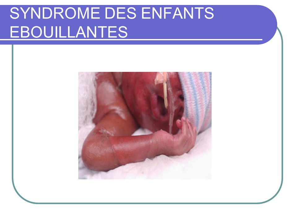SYNDROME DES ENFANTS EBOUILLANTES