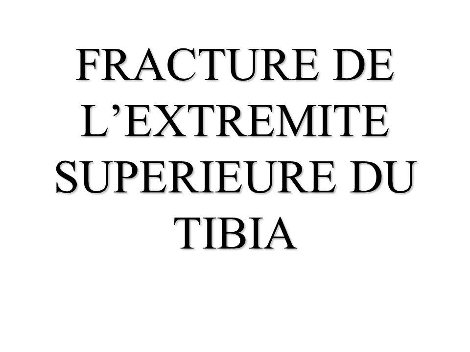 FRACTURE DE L'EXTREMITE SUPERIEURE DU TIBIA