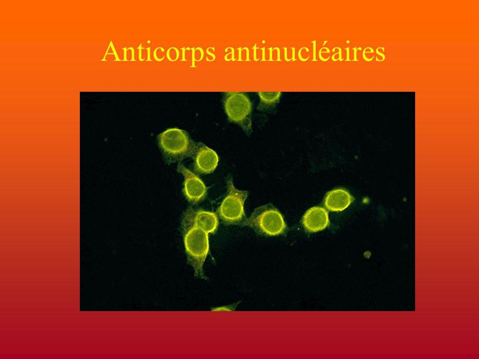 Immunofluorescence Hep-2 homogène –diffuse : dsDNA, histones, topoisomérase –annulaire : dsDNA moucheté –fréquents, peu spécifiques –ribonucléoprotéines, centromères nucléolaire cytoplasmique appareil mitotique