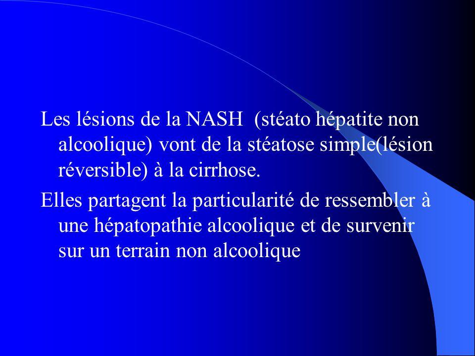 Les lésions de la NASH (stéato hépatite non alcoolique) vont de la stéatose simple(lésion réversible) à la cirrhose. Elles partagent la particularité
