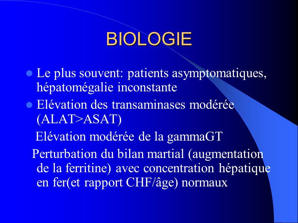 BIOLOGIE Le plus souvent: patients asymptomatiques, hépatomégalie inconstante Elévation des transaminases modérée (ALAT>ASAT) Elévation modérée de la