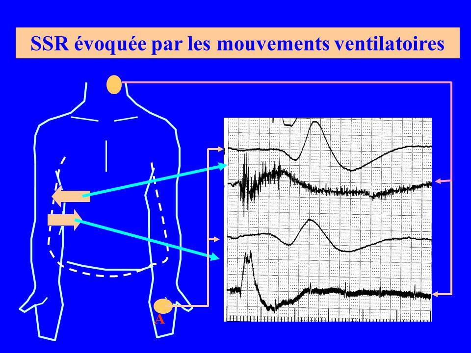 A SSR évoquée par les mouvements ventilatoires