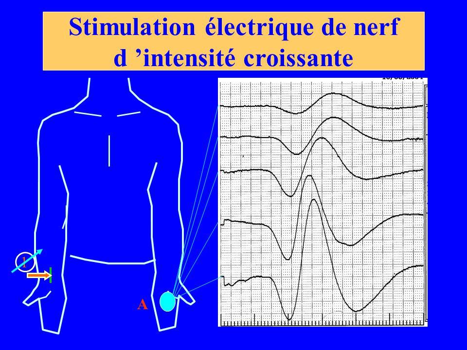 Stimulation électrique de nerf d 'intensité croissante 1 A