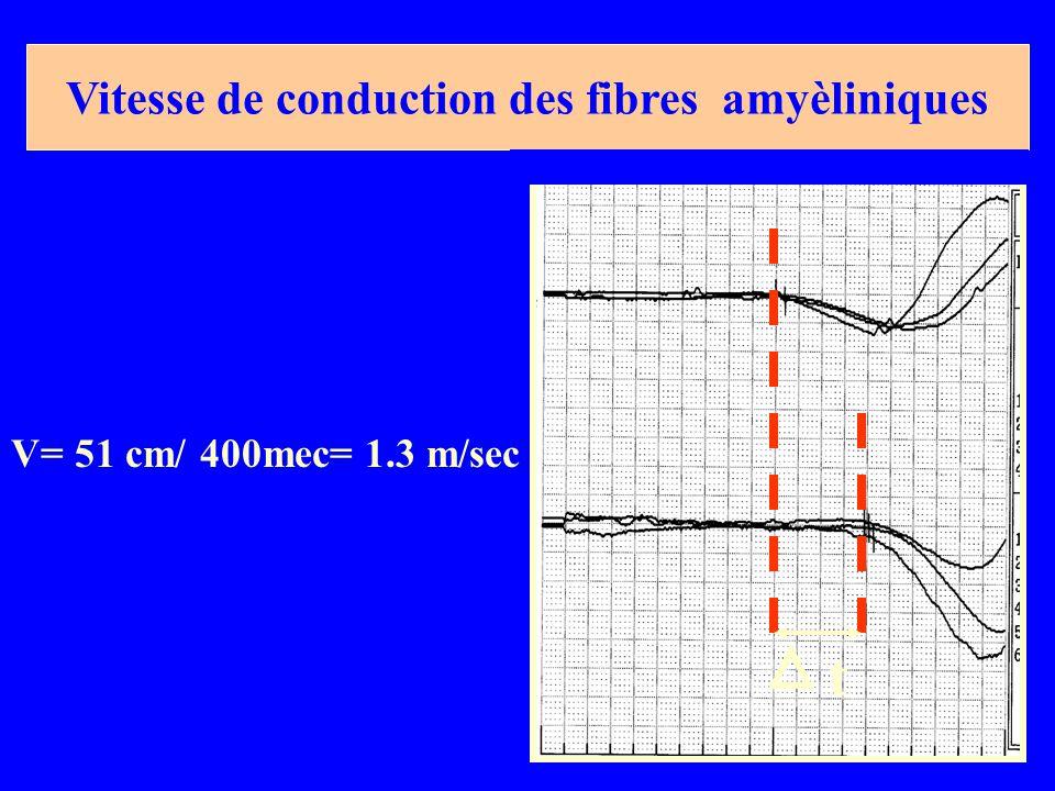 Vitesse de conduction des fibres amyèliniques t V= 51 cm/ 400mec= 1.3 m/sec