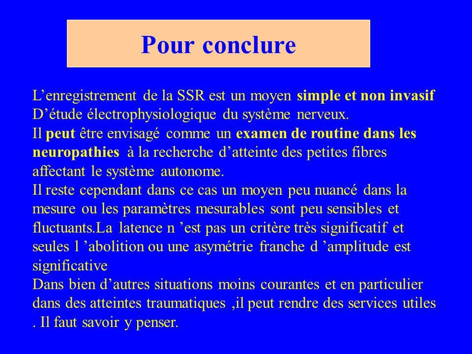 Pour conclure L'enregistrement de la SSR est un moyen simple et non invasif D'étude électrophysiologique du système nerveux.