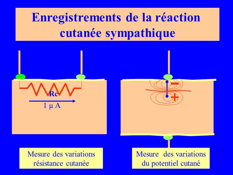 1 µ A Rc Mesure des variations résistance cutanée Mesure des variations du potentiel cutané Enregistrements de la réaction cutanée sympathique