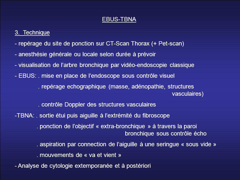 3. Technique - repérage du site de ponction sur CT-Scan Thorax (+ Pet-scan) - anesthésie générale ou locale selon durée à prévoir - visualisation de l