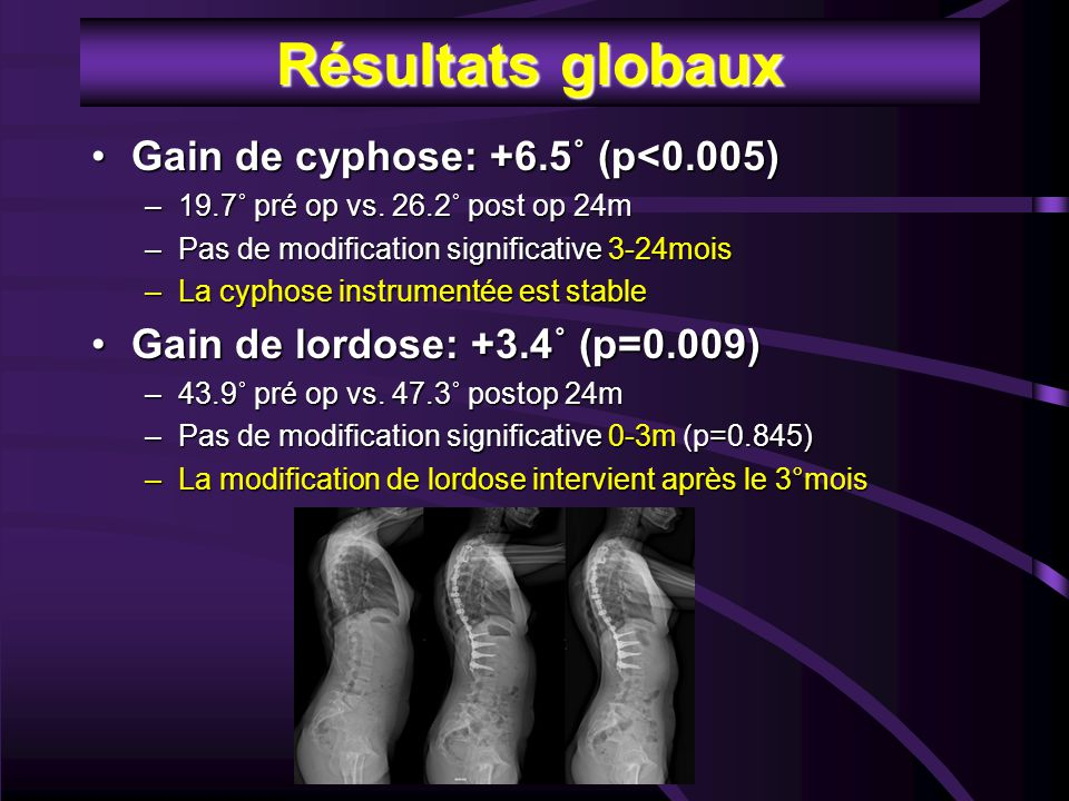 Résultats globaux Gain de cyphose: +6.5˚ (p<0.005)Gain de cyphose: +6.5˚ (p<0.005) –19.7˚ pré op vs. 26.2˚ post op 24m –Pas de modification significat