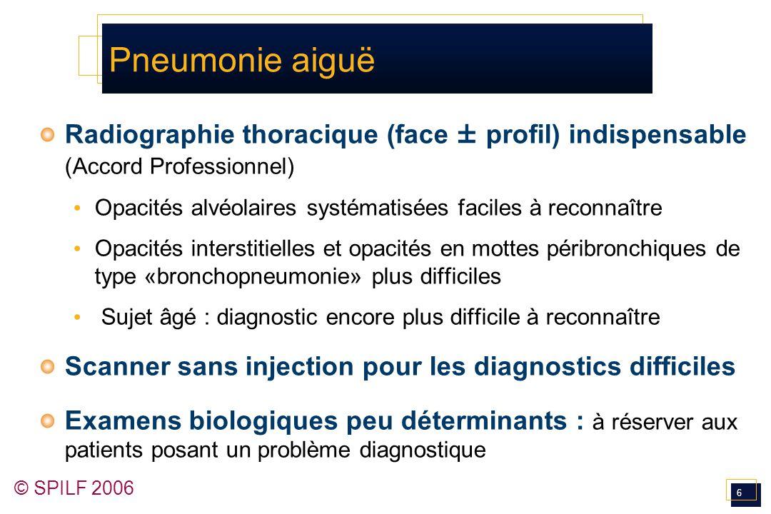 6 © SPILF 2006 Pneumonie aiguë Radiographie thoracique (face ± profil) indispensable (Accord Professionnel) Opacités alvéolaires systématisées faciles