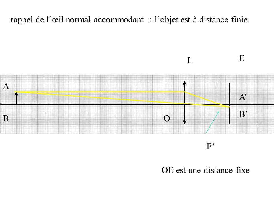 L E O F' OE est une distance fixe A B B' A' rappel de l'œil normal accommodant : l'objet est à distance finie