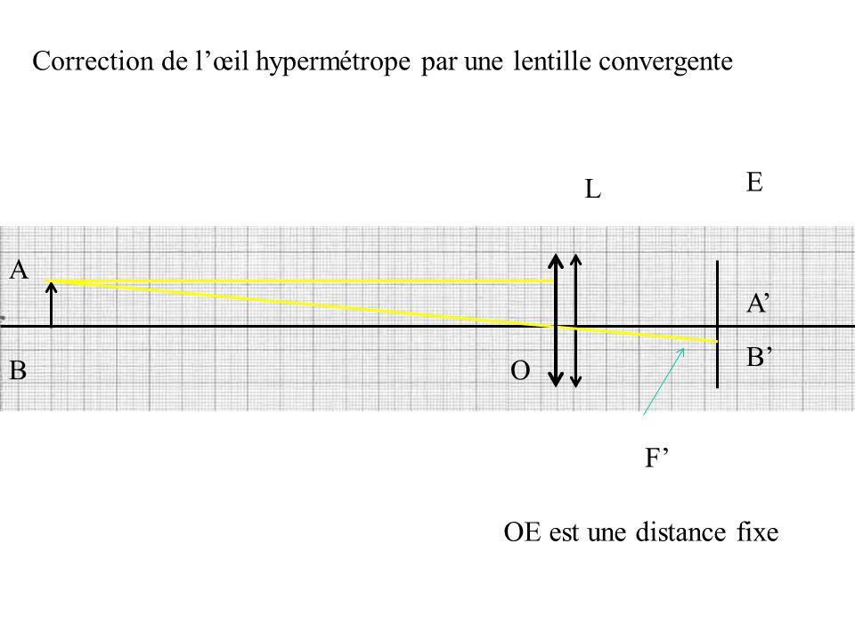 L E O F' OE est une distance fixe A B B' A' Correction de l'œil hypermétrope par une lentille convergente