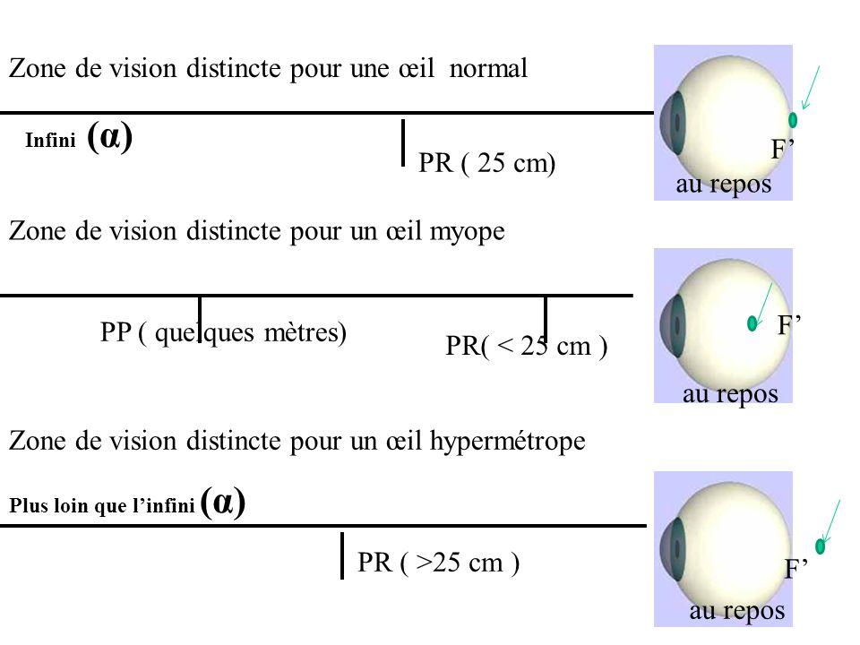 PR ( 25 cm) Infini (α) PR ( >25 cm ) PP ( quelques mètres) Zone de vision distincte pour une œil normal Zone de vision distincte pour un œil myope PR(