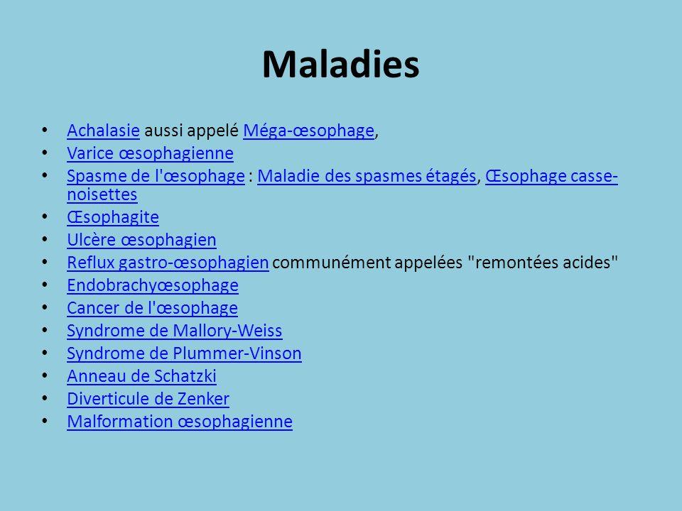 Maladies Achalasie aussi appelé Méga-œsophage, AchalasieMéga-œsophage Varice œsophagienne Spasme de l'œsophage : Maladie des spasmes étagés, Œsophage