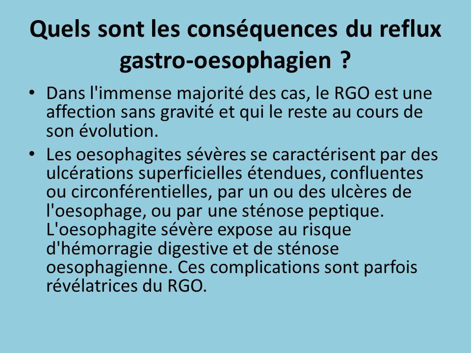 Quels sont les conséquences du reflux gastro-oesophagien ? Dans l'immense majorité des cas, le RGO est une affection sans gravité et qui le reste au c