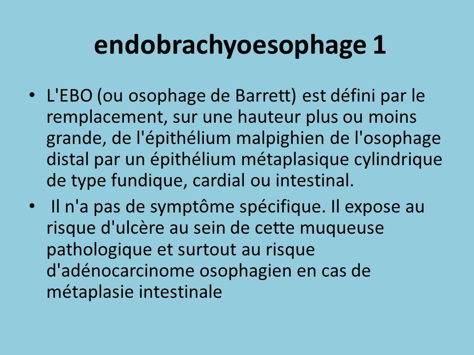endobrachyoesophage 1 L'EBO (ou osophage de Barrett) est défini par le remplacement, sur une hauteur plus ou moins grande, de l'épithélium malpighien