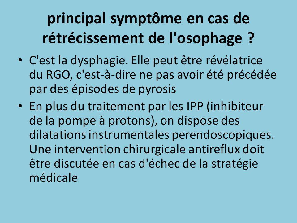 principal symptôme en cas de rétrécissement de l'osophage ? C'est la dysphagie. Elle peut être révélatrice du RGO, c'est-à-dire ne pas avoir été précé
