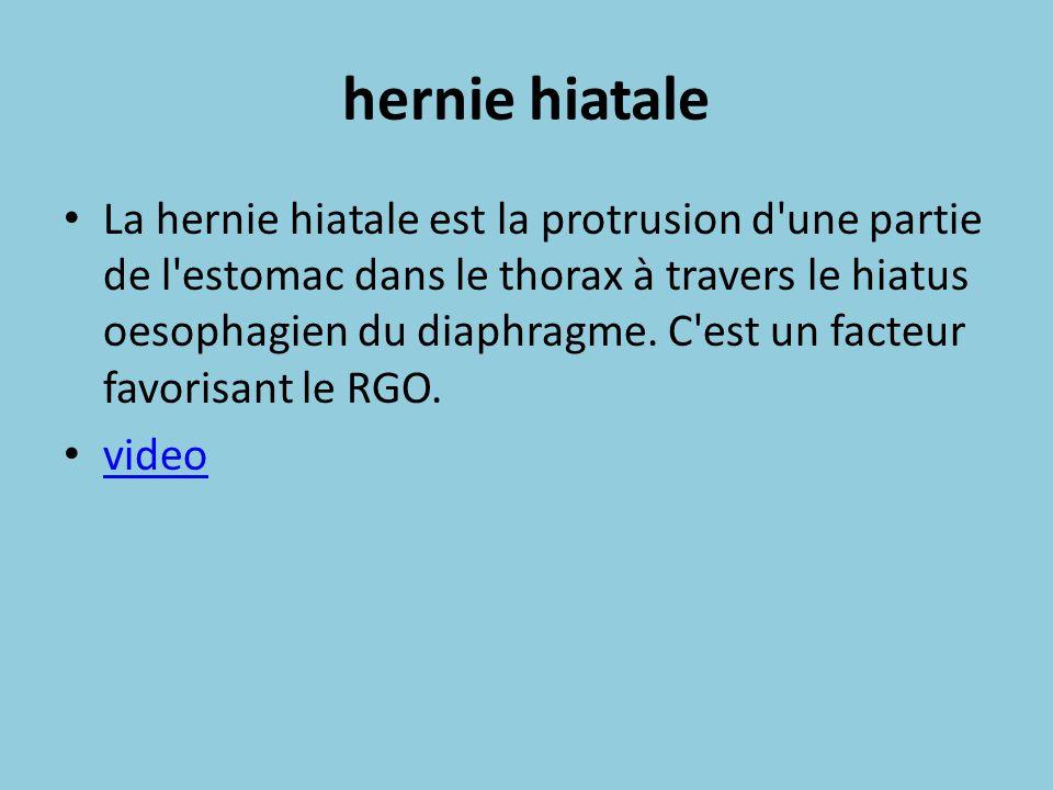 hernie hiatale La hernie hiatale est la protrusion d'une partie de l'estomac dans le thorax à travers le hiatus oesophagien du diaphragme. C'est un fa