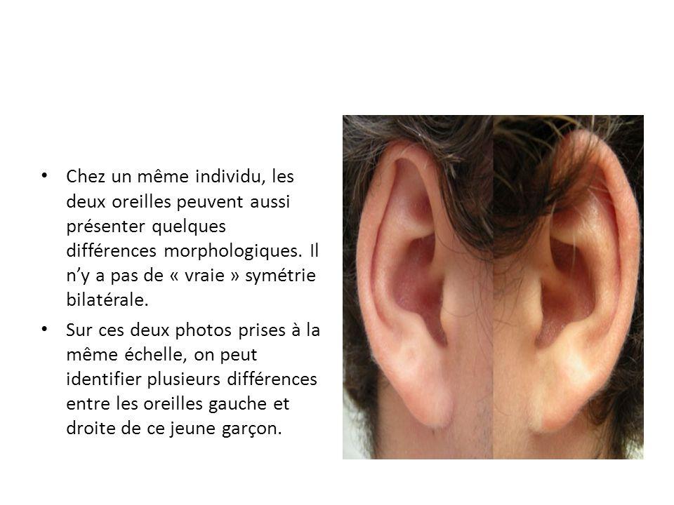 Chez un même individu, les deux oreilles peuvent aussi présenter quelques différences morphologiques. Il n'y a pas de « vraie » symétrie bilatérale. S