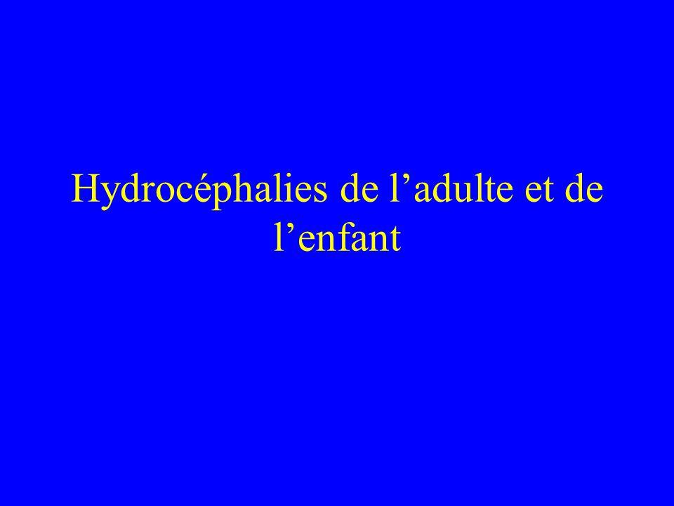 Hydrocéphalies de l'adulte et de l'enfant