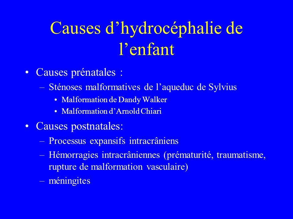 Causes d'hydrocéphalie de l'enfant Causes prénatales : –Sténoses malformatives de l'aqueduc de Sylvius Malformation de Dandy Walker Malformation d'Arn