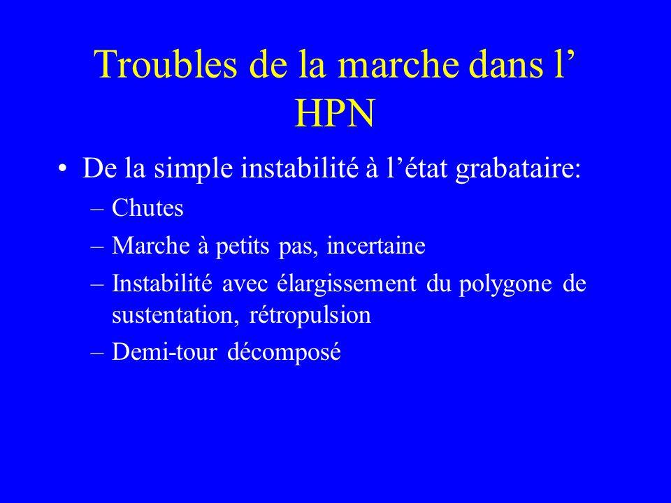 Troubles de la marche dans l' HPN De la simple instabilité à l'état grabataire: –Chutes –Marche à petits pas, incertaine –Instabilité avec élargisseme