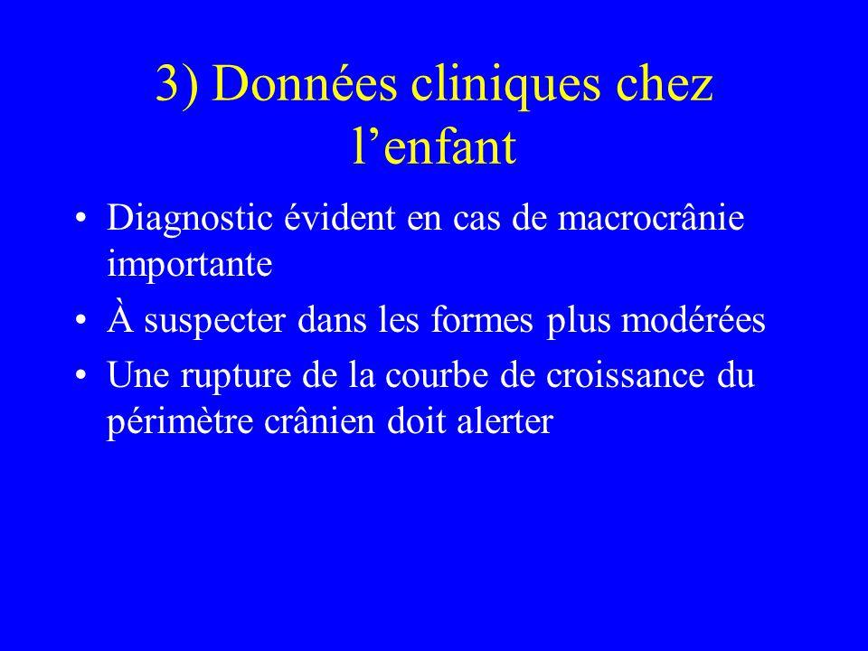 3) Données cliniques chez l'enfant Diagnostic évident en cas de macrocrânie importante À suspecter dans les formes plus modérées Une rupture de la cou