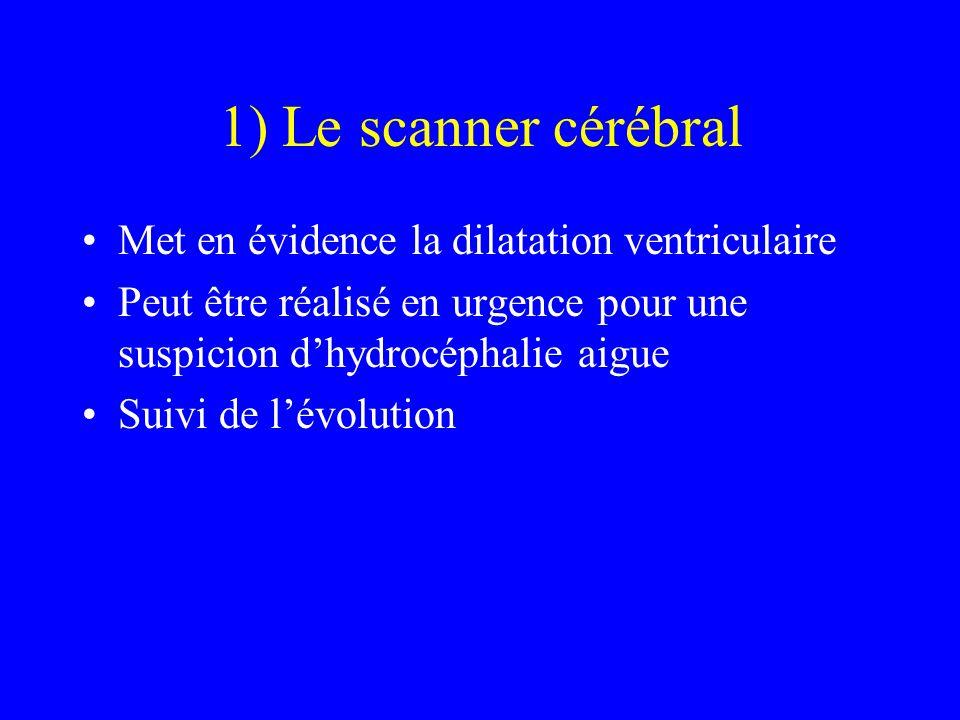 1) Le scanner cérébral Met en évidence la dilatation ventriculaire Peut être réalisé en urgence pour une suspicion d'hydrocéphalie aigue Suivi de l'év