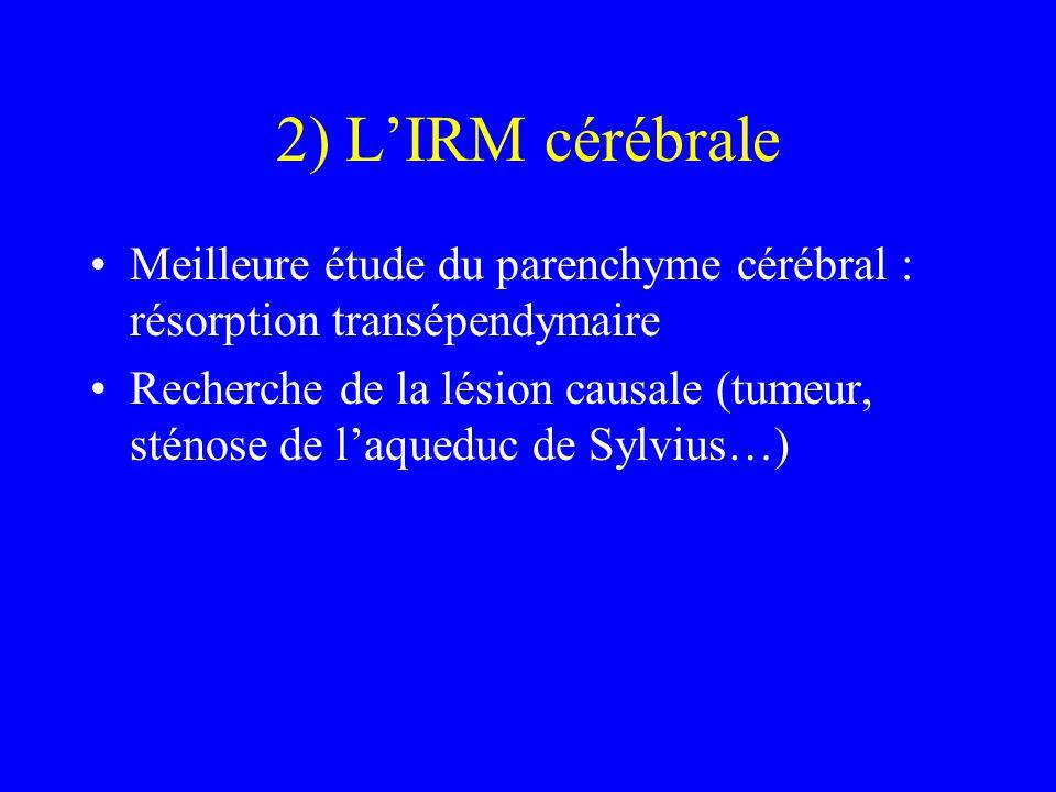 2) L'IRM cérébrale Meilleure étude du parenchyme cérébral : résorption transépendymaire Recherche de la lésion causale (tumeur, sténose de l'aqueduc d