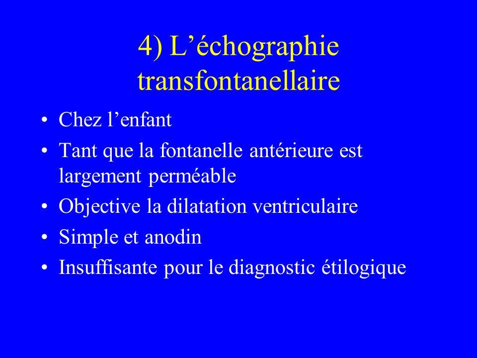 4) L'échographie transfontanellaire Chez l'enfant Tant que la fontanelle antérieure est largement perméable Objective la dilatation ventriculaire Simp