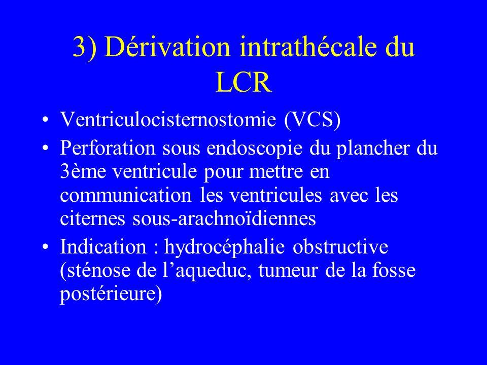 3) Dérivation intrathécale du LCR Ventriculocisternostomie (VCS) Perforation sous endoscopie du plancher du 3ème ventricule pour mettre en communicati