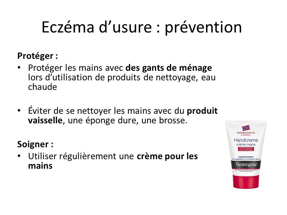 Eczéma d'usure : prévention Protéger : Protéger les mains avec des gants de ménage lors d'utilisation de produits de nettoyage, eau chaude Éviter de s