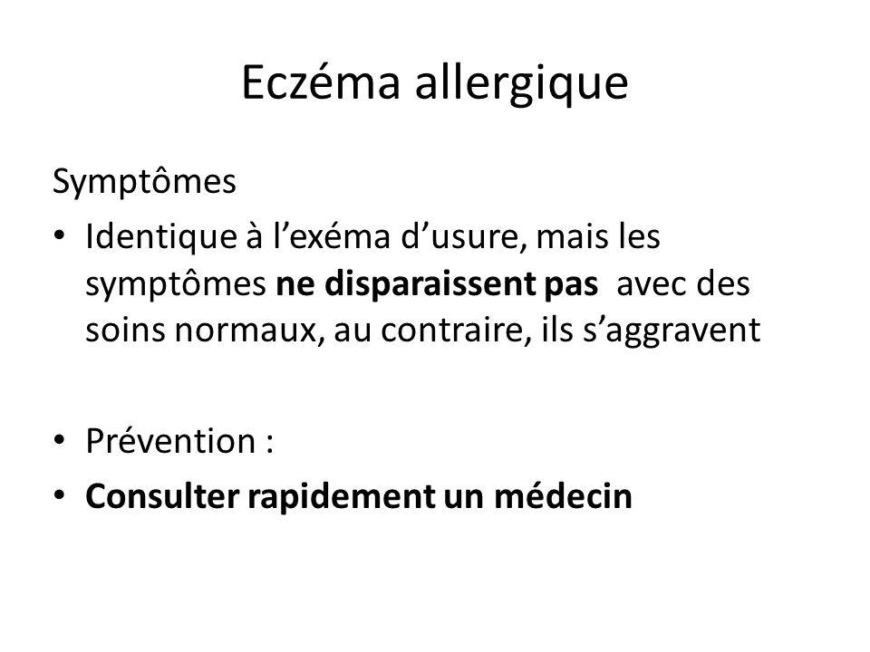 Eczéma allergique Symptômes Identique à l'exéma d'usure, mais les symptômes ne disparaissent pas avec des soins normaux, au contraire, ils s'aggravent